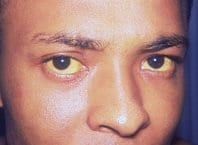 DOENÇA ENDÊMICA - A febre amarela é endêmica. O atual surto iniciou-se em dezembro de 2016 no estado de Minas Gerais. Em pouco mais de um ano confirmaram-se 266 mortes. Na imagem paciente infectado por Febre Amarela. Foto: Org. Mundial da Saúde - OMS.